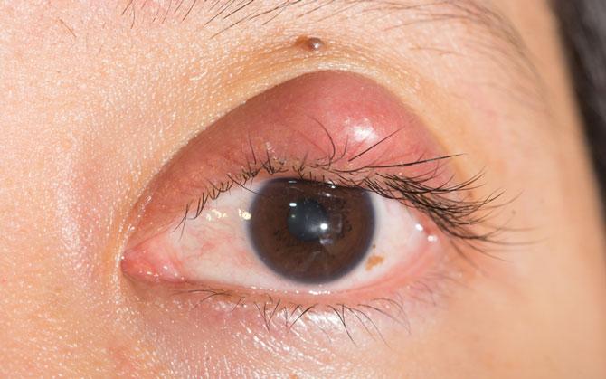 Абсцесс на глазу