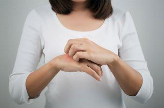 Нейродермит - причины и лечение