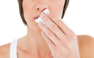 Кровотечение носовое - виды, причины, первая помощь.