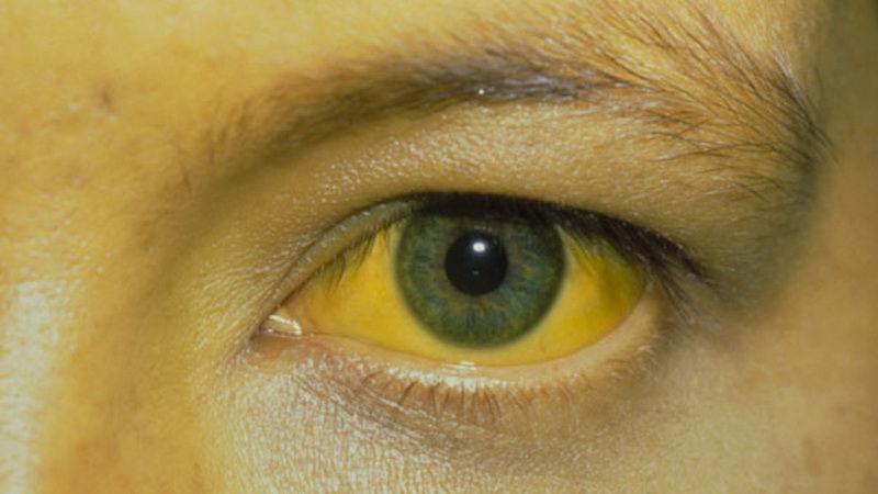 Желтуха - причины, виды, рекомендации, лечение желтухи.