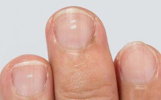 Белые пятна на ногтях - лейконихия. Причины появления, лечение.