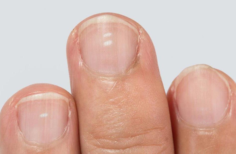 Белые пятна на ногтях - лейконихия