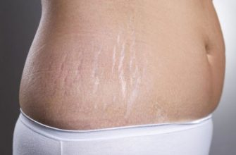 Растяжки после родов - простые рецепты для устранения растяжек