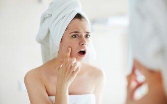 Черные точки на лице: как очистить лицо от черных точек