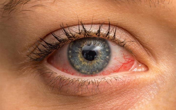 Конъюнктивит: симптомы, виды, лечение и профилактика