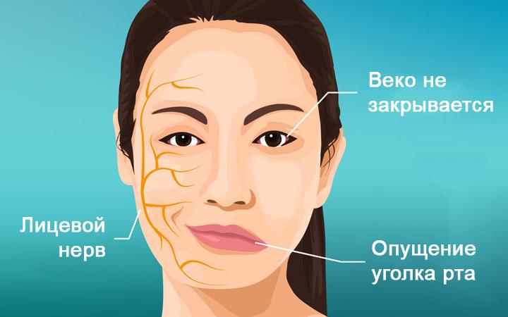 Лицевой неврит