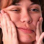 Неврит: лечение, симптомы, причины заболевания
