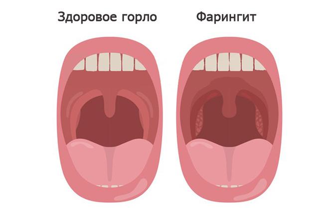 Фарингит: здоровое и больное горло