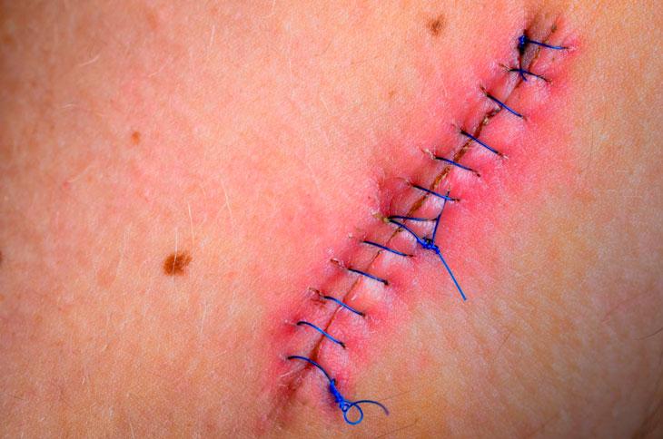 Шов после удаления аппендицита