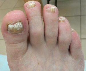 Грибок стопы, грибок ногтей