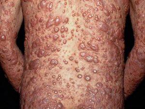 Лепра - причины, симптомы, профилактика и лечение лепры.
